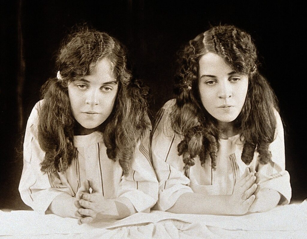 Song sinh Daisy and Violet Hilton c1927b |TOPMOST.VN